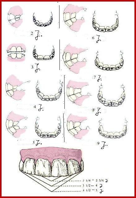 Welche Zähne in welchem Alter vorhanden sein sollten.